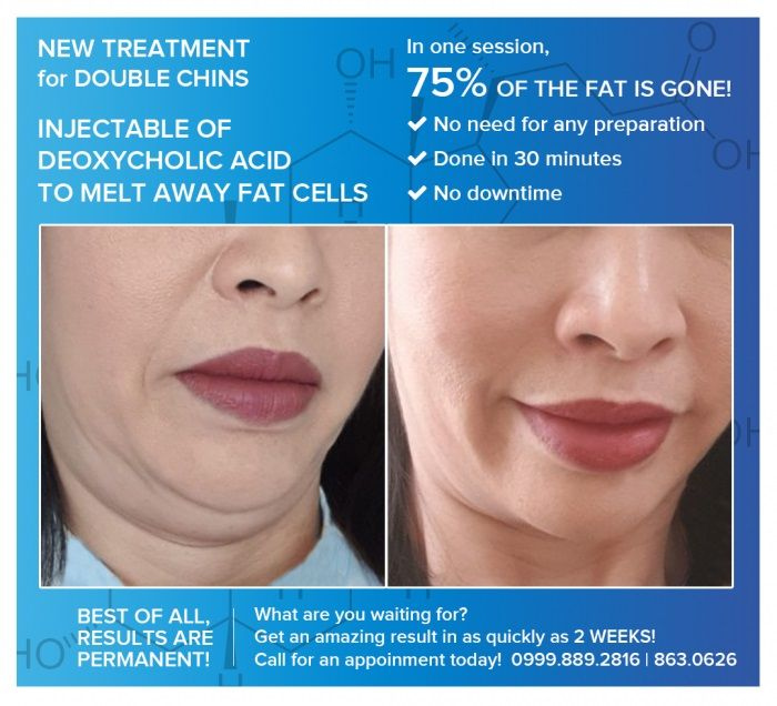 New Treatment for Double Chins