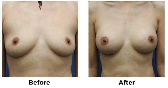 breast augmentation-2
