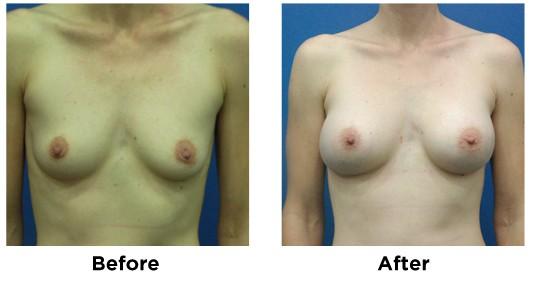 breast augmentation-3