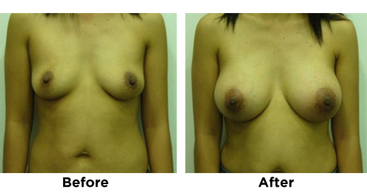BREAST-AUGMENTATION-2