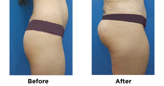 Butt Augmentation and Lipo Flanks 1