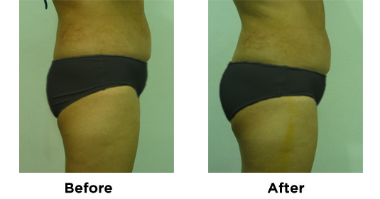 Butt Augmentation and Lipo Flanks 3