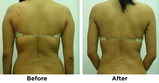LIPOSUCTION-ARMS-BACK-1