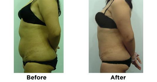 Liposuction Abdomen 4