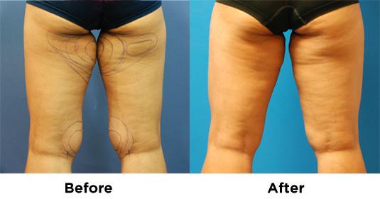 Liposuction Inner Tigh-Knee 1