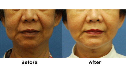 Liposuction Jowls with Fat Transfer 3