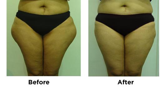 Liposuction Saddlebags 2