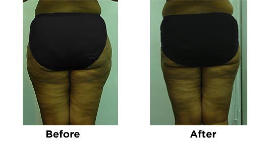 Liposuction Saddlebags 3