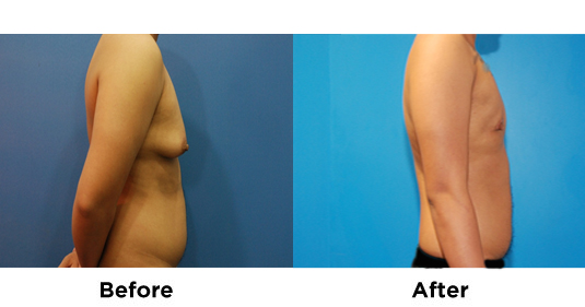 Subcutaneous Mastectomy 2