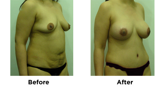 Tummy Tuck with Breast Augmentation 1