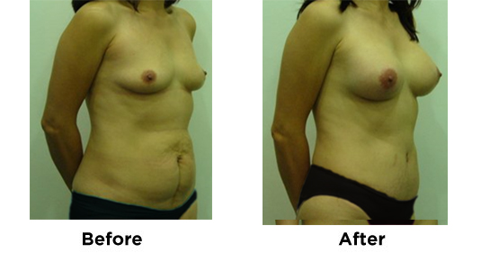 Tummy Tuck with Breast Augmentation 2