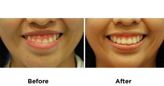botox-GUMMY-SMILE-1