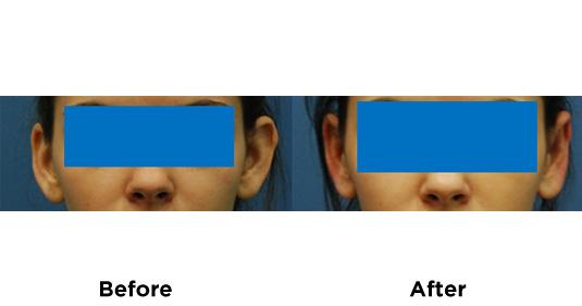 ear-pinning-1