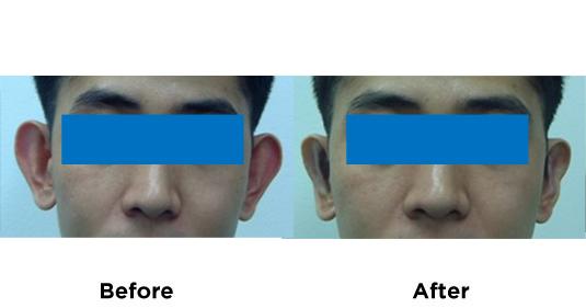 ear-pinning-2