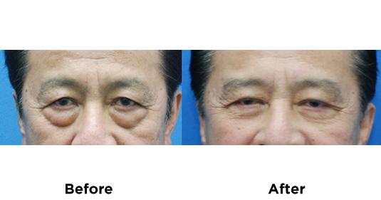 eyebag-surgery-1