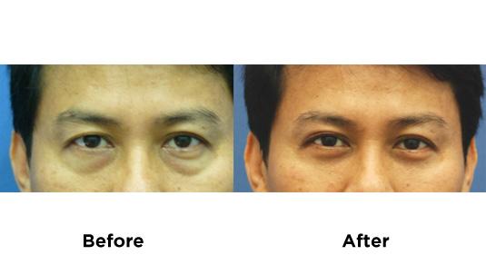 eyebag-surgery-2