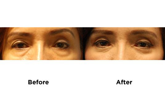 eyebag-surgery-3