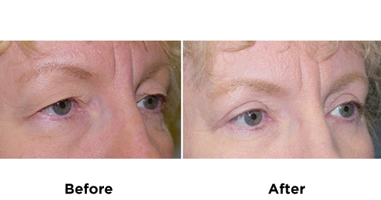 eyelid-surgery-UPPER-AND-LOWER-EYELID-SURGERY-1