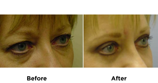 eyelid-surgery-UPPER-AND-LOWER-EYELID-SURGERY-2