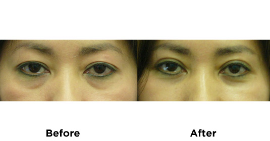 eyelid-surgery-UPPER-AND-LOWER-EYELID-SURGERY-3
