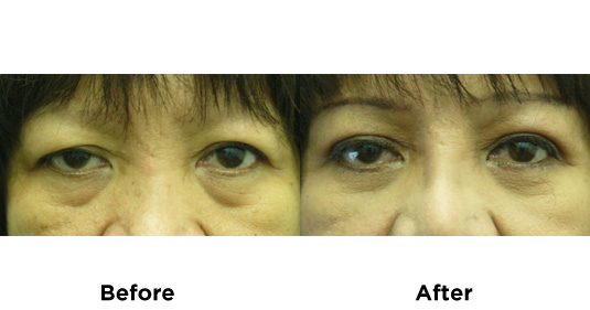 eyelid-surgery-UPPER-AND-LOWER-EYELID-SURGERY-4