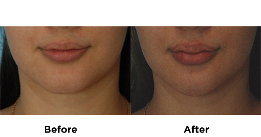 filler-lips-and-chin