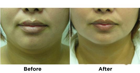 liposuction-chin-5