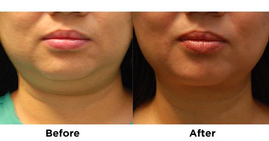 liposuction-chin-6