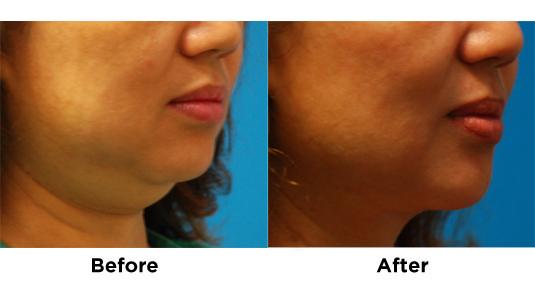 liposuction-chin-7