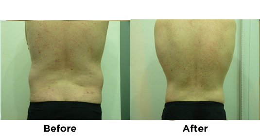 liposuction-flanks-4