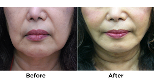 liposuction-jowls-with-fat-transfer-1