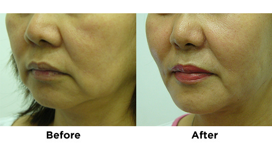 liposuction-jowls-with-fat-transfer-2