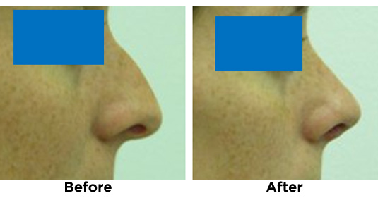 nose-surgery-NOSE-REDUCTION-1