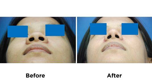 nose-surgery-RHINOPLASTY-ALARPLASTY-1