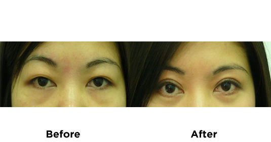 upper-and-lower-eyelid-surgery-5