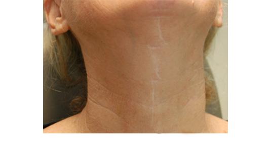 wattle-scar-apearance-2
